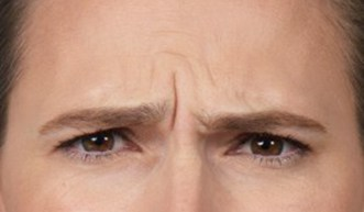 Botox® Injections - 2