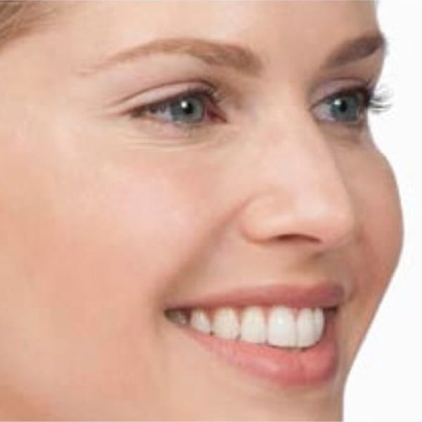 Botox® Injections - 7