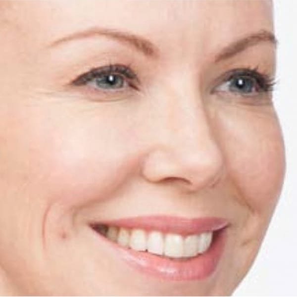 Botox® Injections - 11