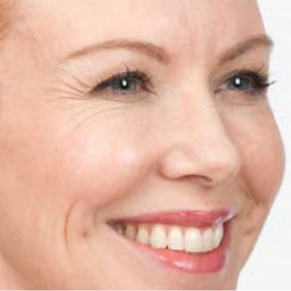 Botox® Injections - 10