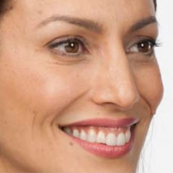 Botox® Injections - 13