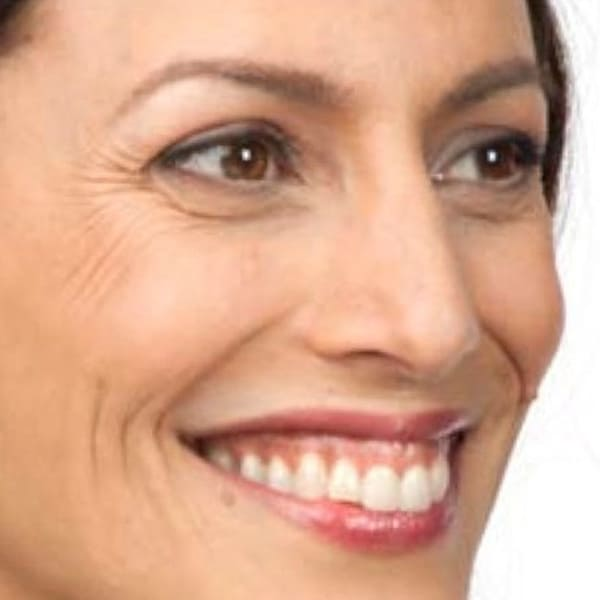 Botox® Injections - 12