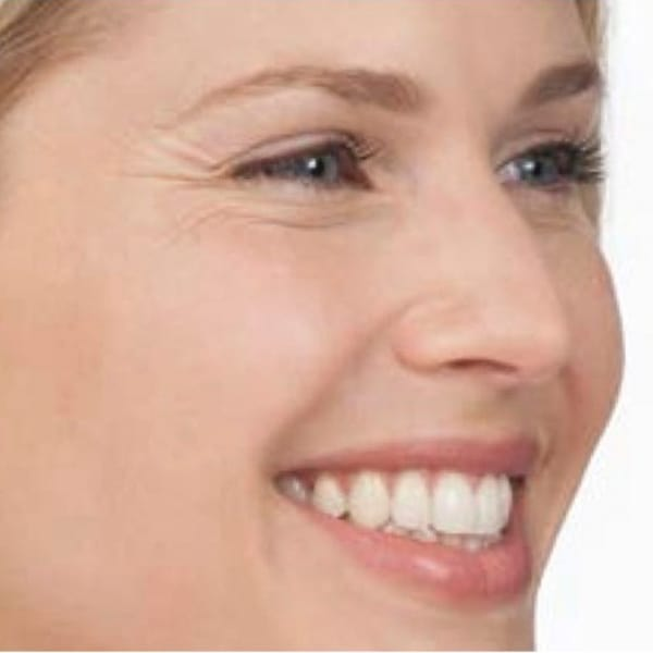 Botox® Injections - 6