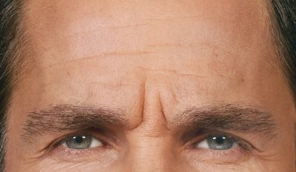 Botox® Injections - 4