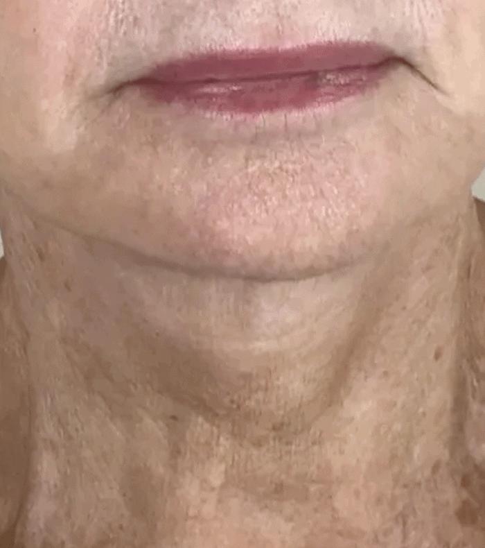 Plasma Skin Tightening - 5