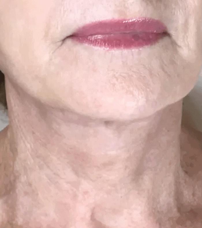 Plasma Skin Tightening - 6